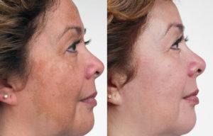 san-antonio-best-ipl-photo-facial-photofacial-fotofacial