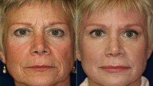 san-antonio-laser-skin-resurfacing